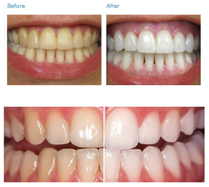 teeth whitening glasgow examples
